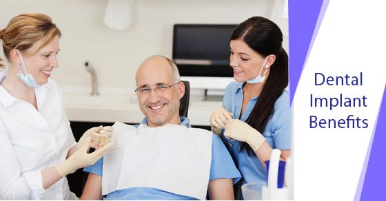 Dental Implant Benefits