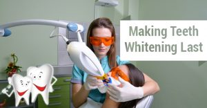 Teeth Whitening Treatment Burlington