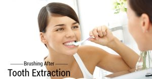 Brushing after Tooth Extraction