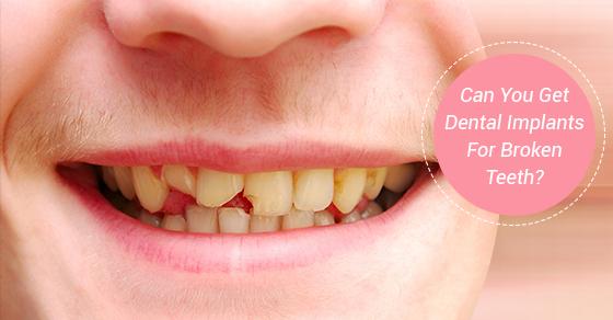 Dental Implants For Broken Teeth