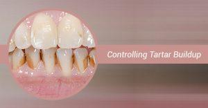 Dental Tartar buildup