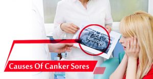 Causes of canker sores