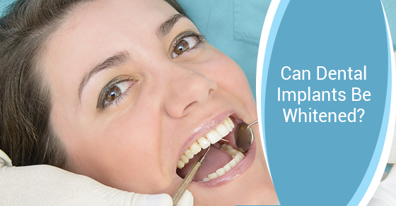 Can Dental Implants Be Whitened