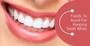 Foods to avoid for white teeth
