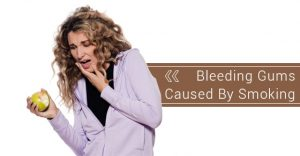 Bleeding Gums-Causes