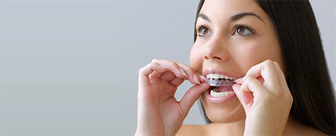 Tooth whitening procedure Burlington