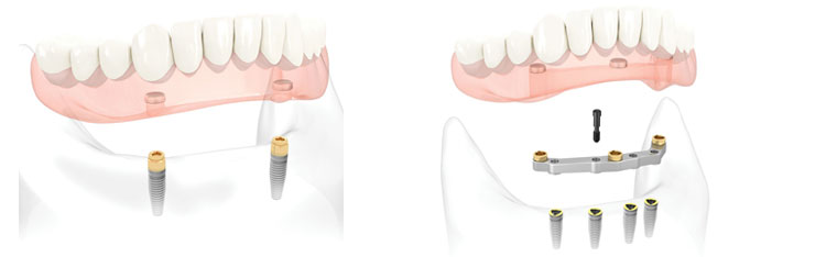 implants & dentures burlington