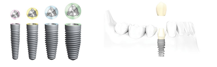 Implant Dentistry Centre