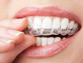 teeth whitening in Pearl Dental Clinic