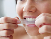 teeth whitening treatment in Burlington