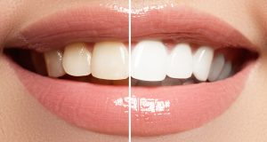 Teeth whitening Burlington