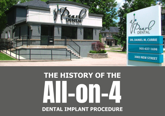 The History of the All-on-4 Dental Implant Procedure